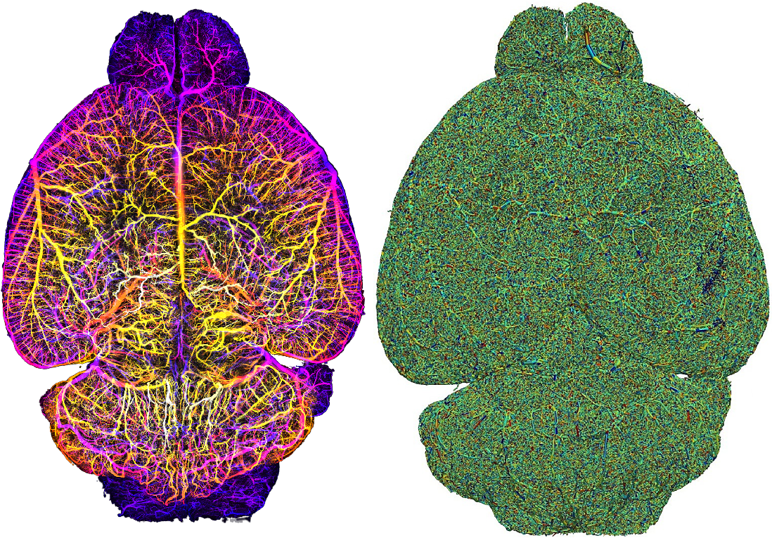 Figure 3 for Whole Brain Vessel Graphs: A Dataset and Benchmark for Graph Learning and Neuroscience (VesselGraph)