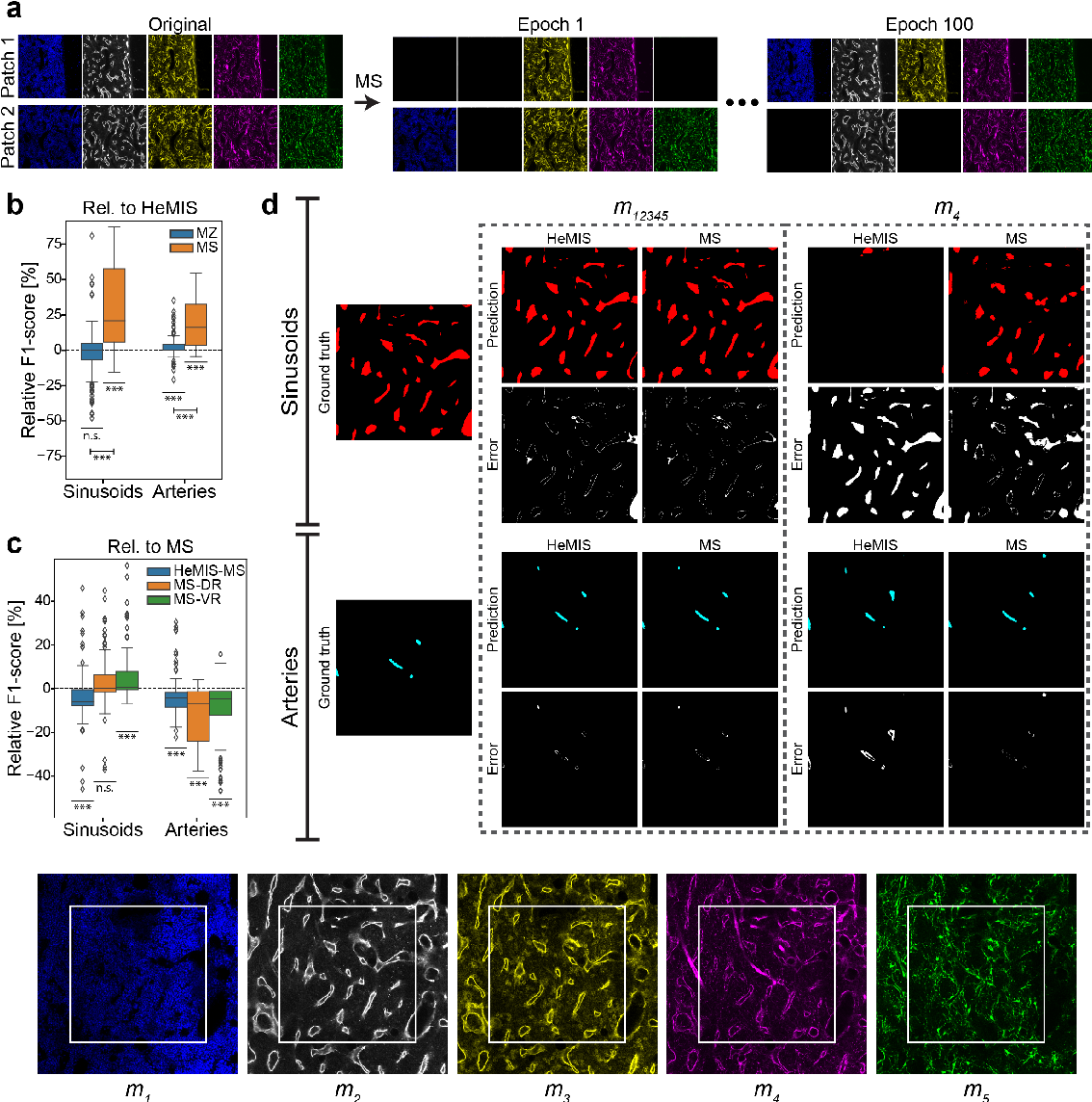 Figure 3 for Modality Attention and Sampling Enables Deep Learning with Heterogeneous Marker Combinations in Fluorescence Microscopy