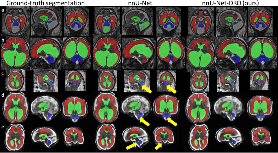 Figure 3 for Distributionally Robust Segmentation of Abnormal Fetal Brain 3D MRI