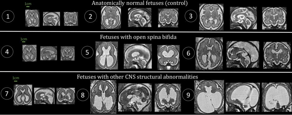 Figure 1 for Distributionally Robust Segmentation of Abnormal Fetal Brain 3D MRI