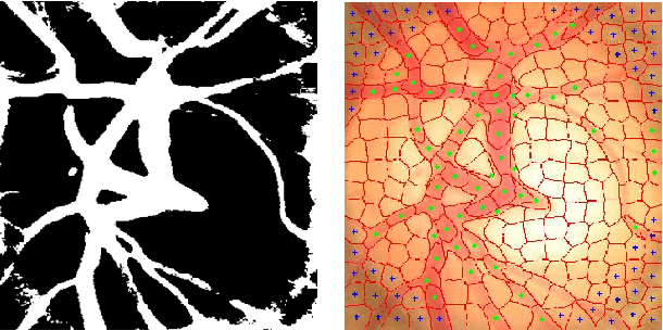 Fig. 3. Blood vessel extraction and removal. Left: blood vessel mask. Right: superpixels on blood vessels (marked with green dots) or out of disc (with blue dots).