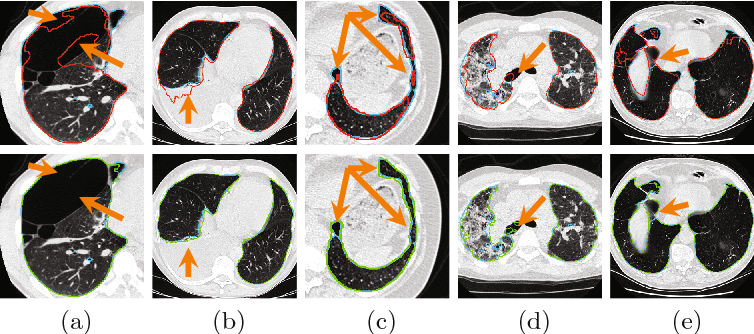 Figure 3 for Progressive and Multi-Path Holistically Nested Neural Networks for Pathological Lung Segmentation from CT Images