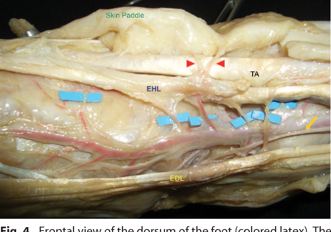 Figure 4 From Vascular Anatomy Of The Dorsum Of The Foot Semantic
