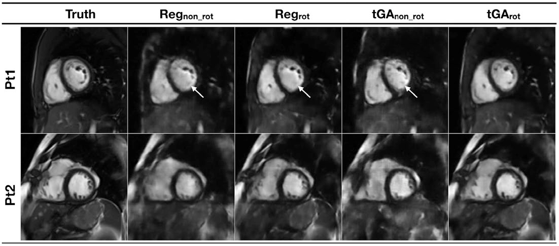 Figure 1 for Real-time Cardiovascular MR with Spatio-temporal Artifact Suppression using Deep Learning - Proof of Concept in Congenital Heart Disease