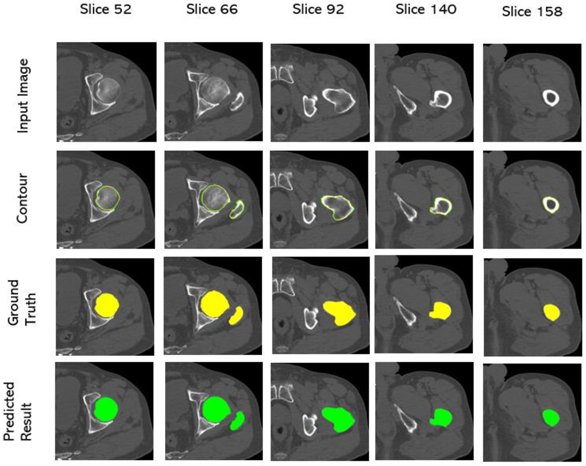 Figure 4 for A Deep Learning-Based Approach to Extracting Periosteal and Endosteal Contours of Proximal Femur in Quantitative CT Images