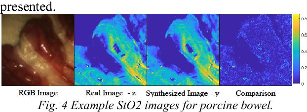 Figure 3 for Estimation of Tissue Oxygen Saturation from RGB Images based on Pixel-level Image Translation