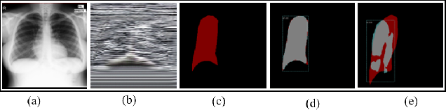 Figure 3 for DeepEDN: A Deep Learning-based Image Encryption and Decryption Network for Internet of Medical Things
