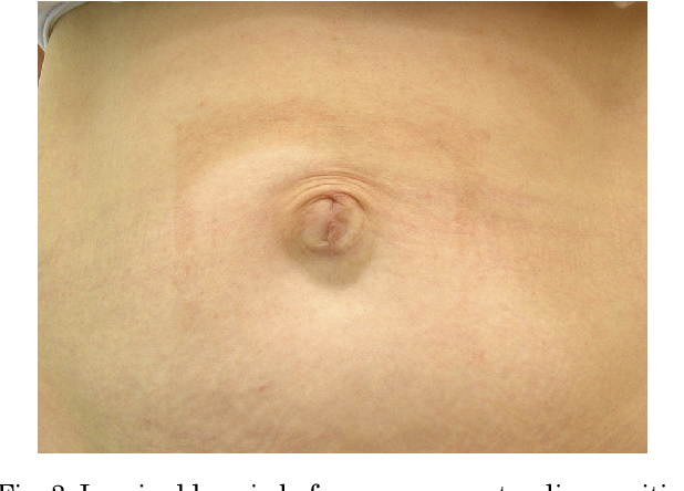 Figure 3 from Mesh repair of umbilical hernia without a visible