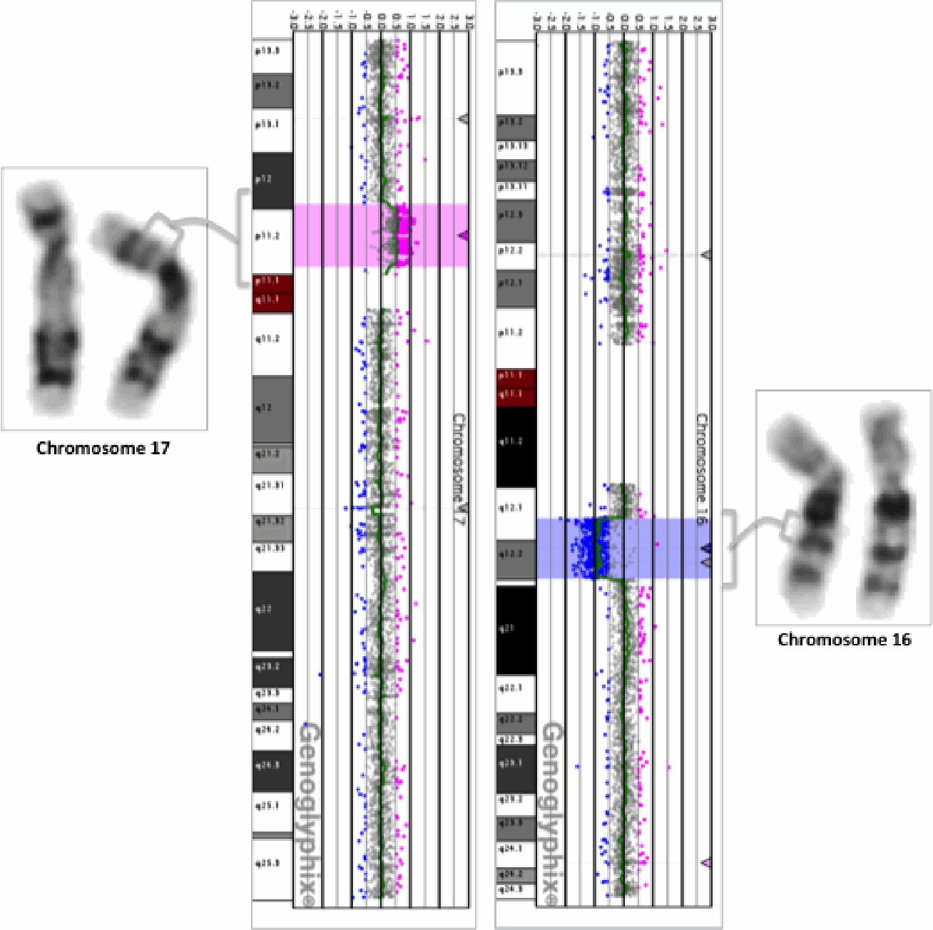 Figure 2 from Two interstitial rearrangements (16q deletion and 17p