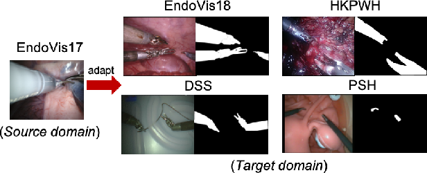 Figure 1 for One to Many: Adaptive Instrument Segmentation via Meta Learning and Dynamic Online Adaptation in Robotic Surgical Video