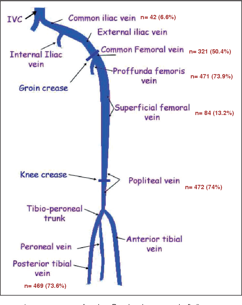 Clinical implications of the anatomical variation of deep venous ...
