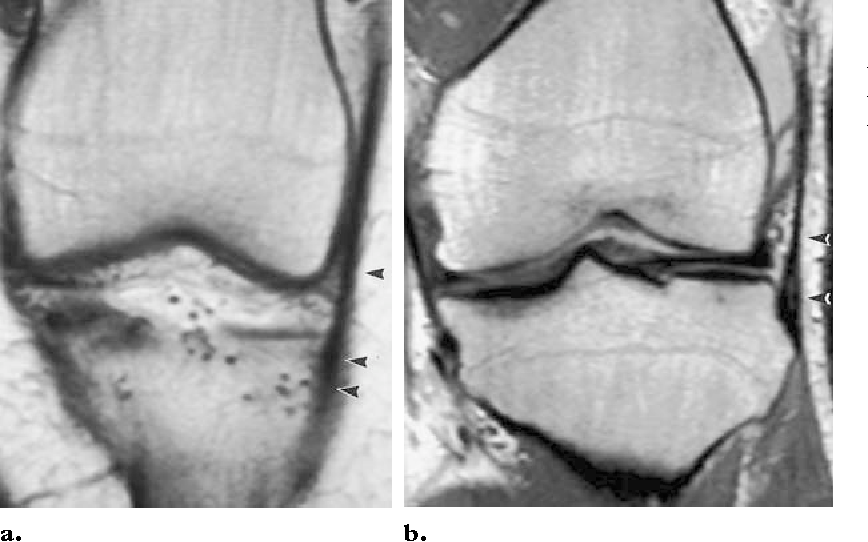 Lateral stabilizing structures of the knee: functional anatomy and ...