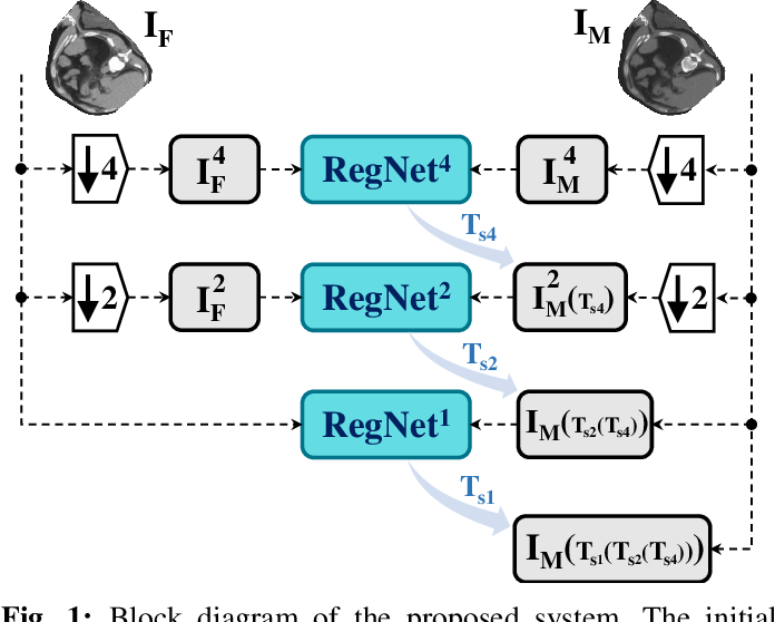 Figure 1 for 3D Convolutional Neural Networks Image Registration Based on Efficient Supervised Learning from Artificial Deformations