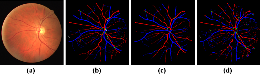 Figure 3 for TR-GAN: Topology Ranking GAN with Triplet Loss for Retinal Artery/Vein Classification