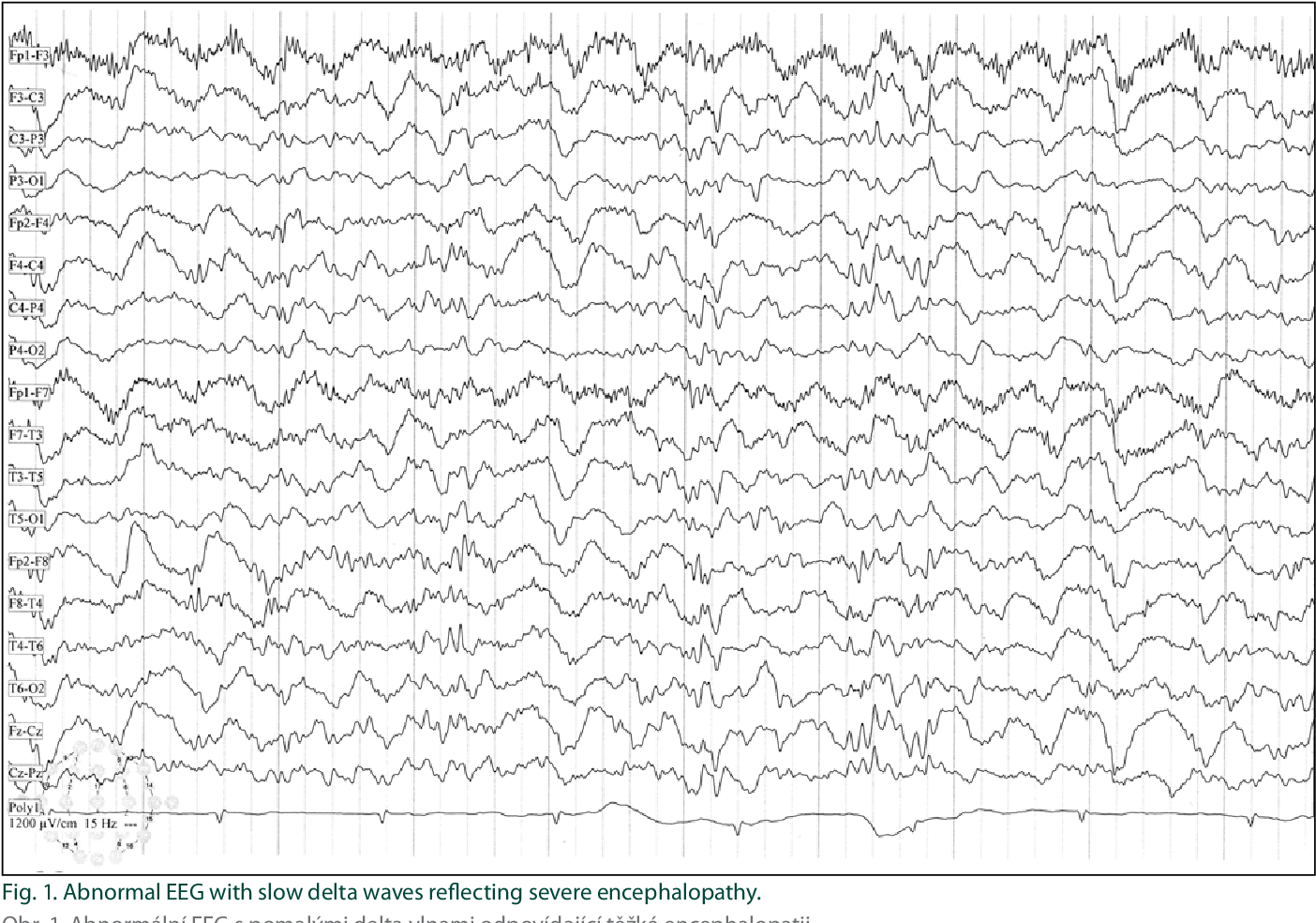 Baclofen and Clonazepam Overdose in a Patient with Chronic