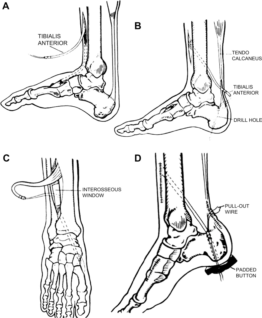Figure 6 From Tendon Transfers For Achilles Reconstruction