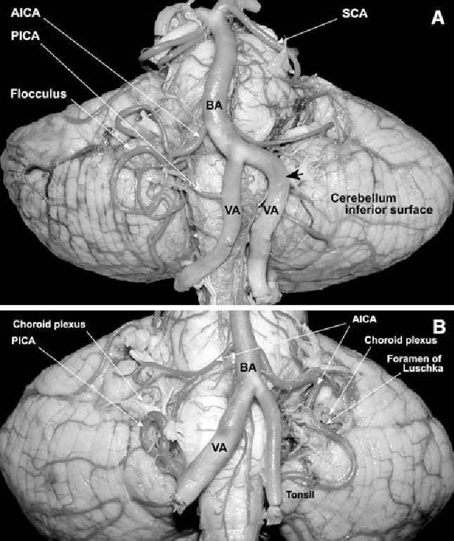 Microsurgical anatomy of the foramen of Luschka in the ...