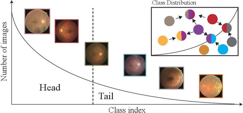 Figure 1 for Relational Subsets Knowledge Distillation for Long-tailed Retinal Diseases Recognition