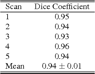 Table 1. Segmentation Comparison by means of Dice Coefficients. The Dice coefficient for each of the five cases tested showed excellent overlap between semi-automated and manual approaches