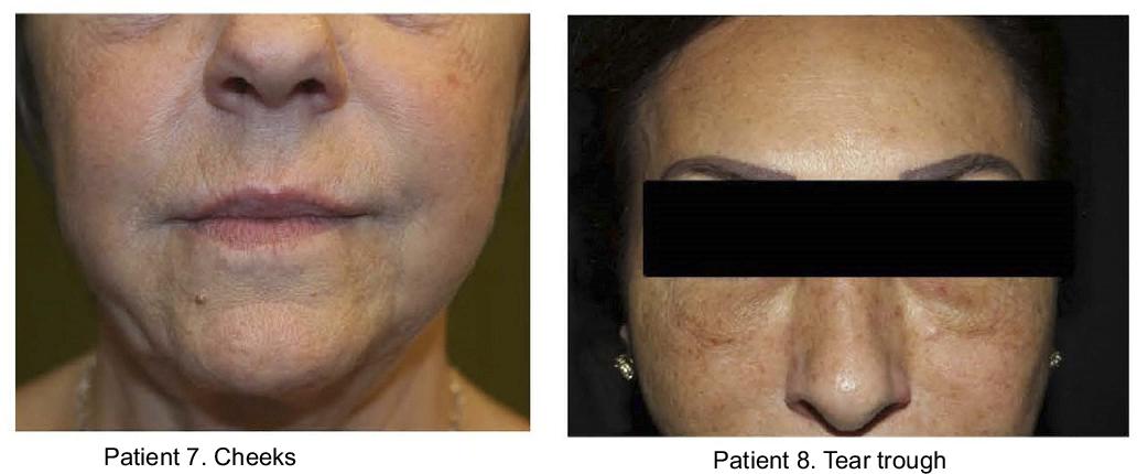 PDF] Delayed hypersensitivity reaction to hyaluronic acid dermal
