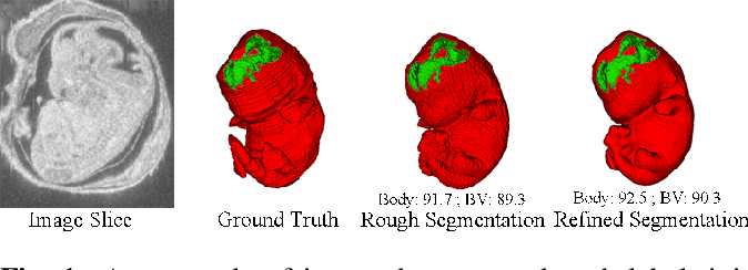 Figure 1 for Deep Mouse: An End-to-end Auto-context Refinement Framework for Brain Ventricle and Body Segmentation in Embryonic Mice Ultrasound Volumes