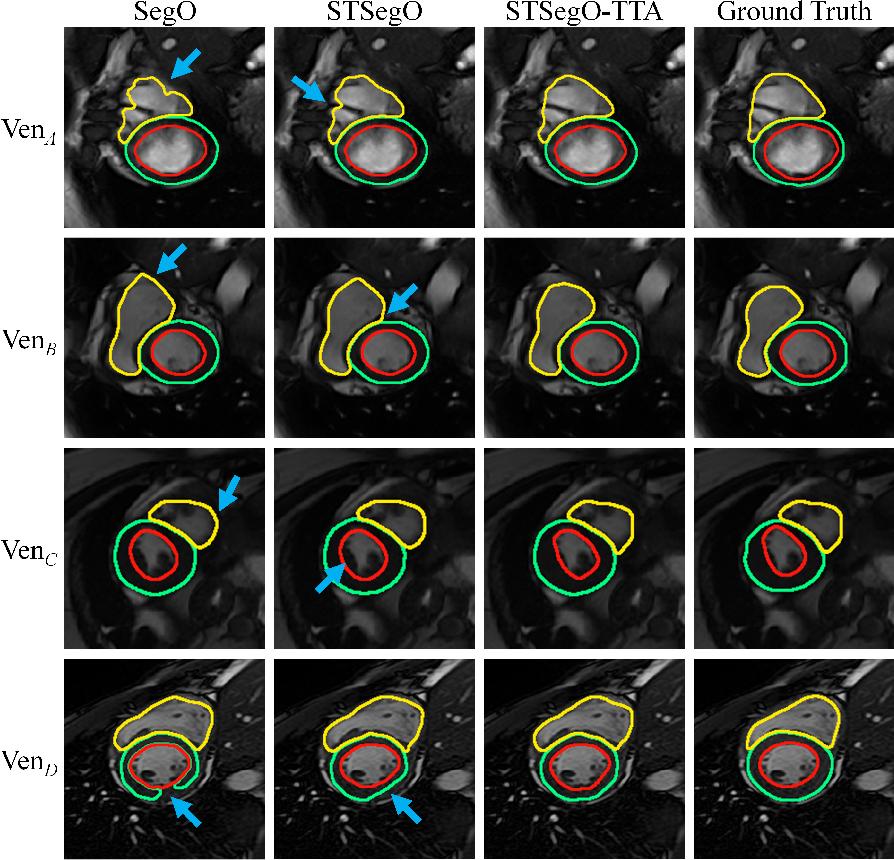 Figure 3 for Style-invariant Cardiac Image Segmentation with Test-time Augmentation