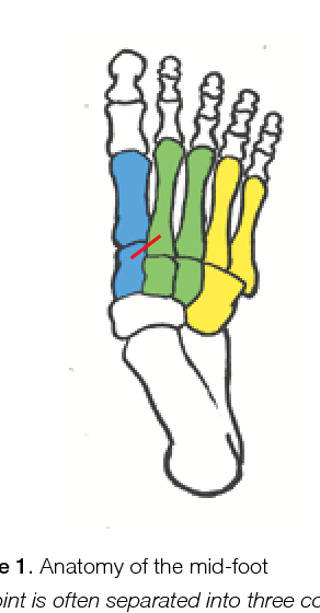 Figure 1 from Lisfranc injuries. - Semantic Scholar