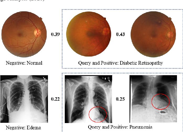 Figure 1 for Deep Triplet Hashing Network for Case-based Medical Image Retrieval