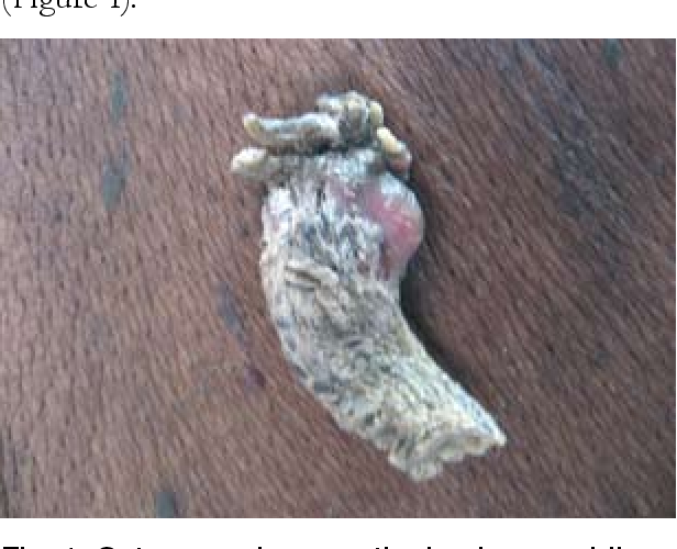 Figure 1 from Cutaneous horn: a potentially malignant entity