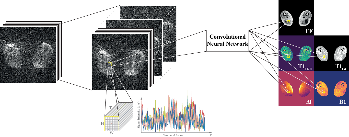 Figure 1 for Spatially Regularized Parametric Map Reconstruction for Fast Magnetic Resonance Fingerprinting