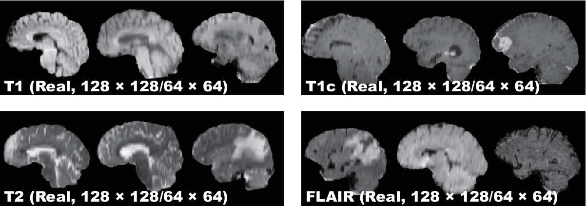 Figure 3 for Pathology-Aware Generative Adversarial Networks for Medical Image Augmentation