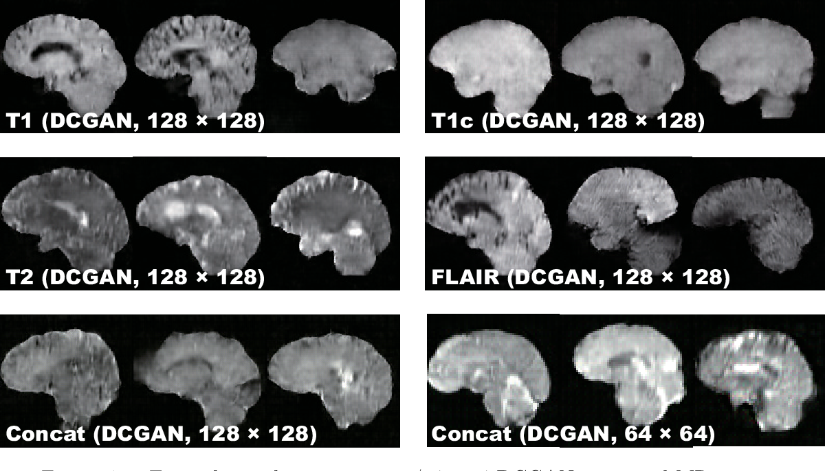 Figure 4 for Pathology-Aware Generative Adversarial Networks for Medical Image Augmentation