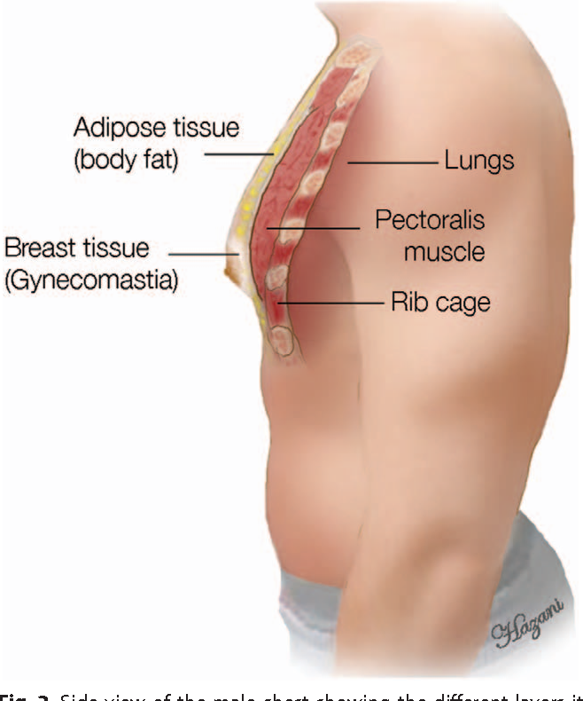 Anatomy of the Gynecomastia Tissue and Its Clinical Significance ...