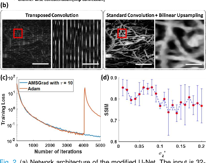 Figure 2 for Deep Image Prior for Sparse-sampling Photoacoustic Microscopy