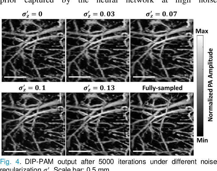 Figure 4 for Deep Image Prior for Sparse-sampling Photoacoustic Microscopy