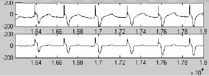 Fig. 7 Removing the large T wave