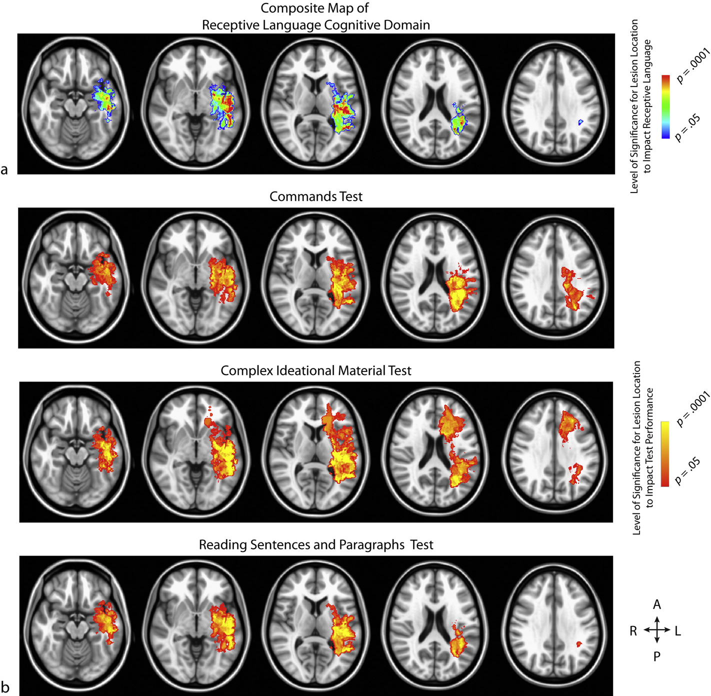 Association between lesion location and language function in adult