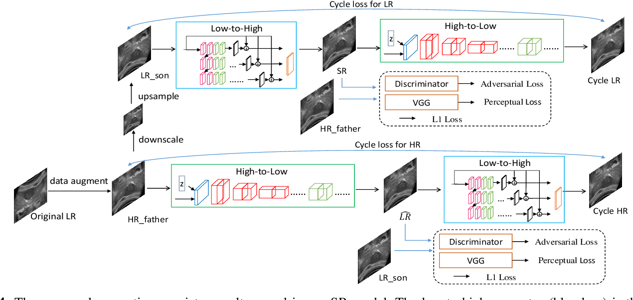 Figure 4 for Perception Consistency Ultrasound Image Super-resolution via Self-supervised CycleGAN