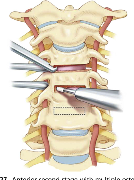 Figure 27 From Assessment And Treatment Of Cervical Deformity