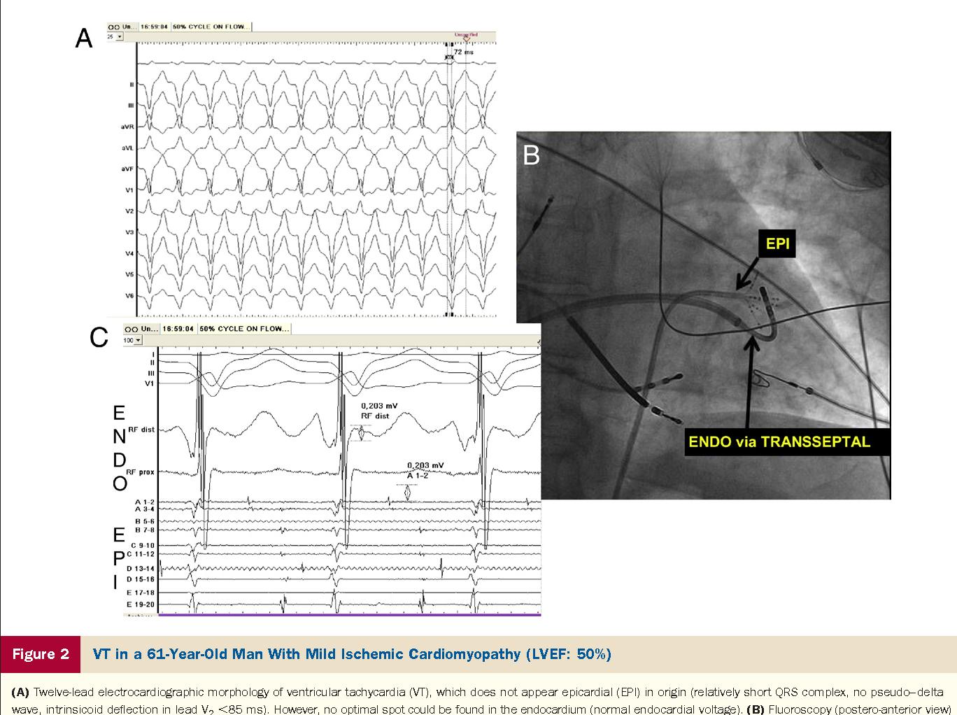 Epicardial Ventricular Tachycardia Ablation A Multicenter Safety 12 Lead Delta Wiring Diagram Study Semantic Scholar