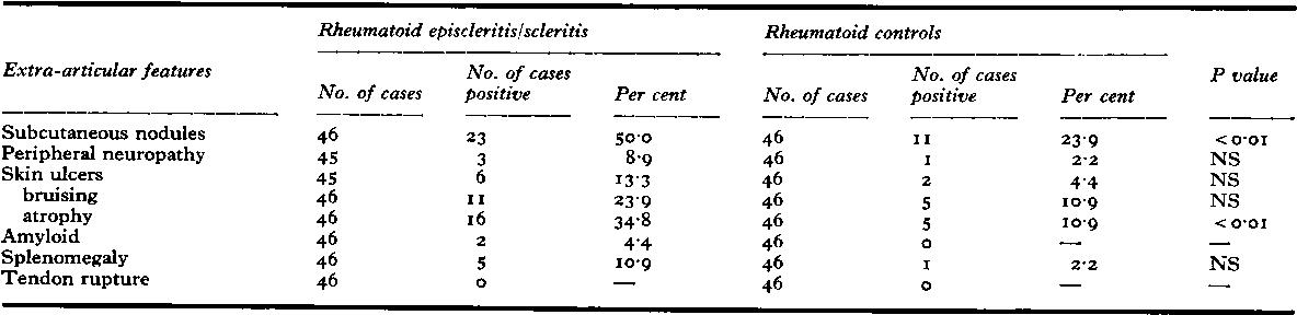 Table XVIII Extra-articular features in patients with rheumatoid episcleritis and rheumatoid scleritis