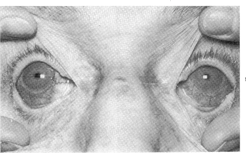 FIG. 2 Bilateral diffuse scleritis