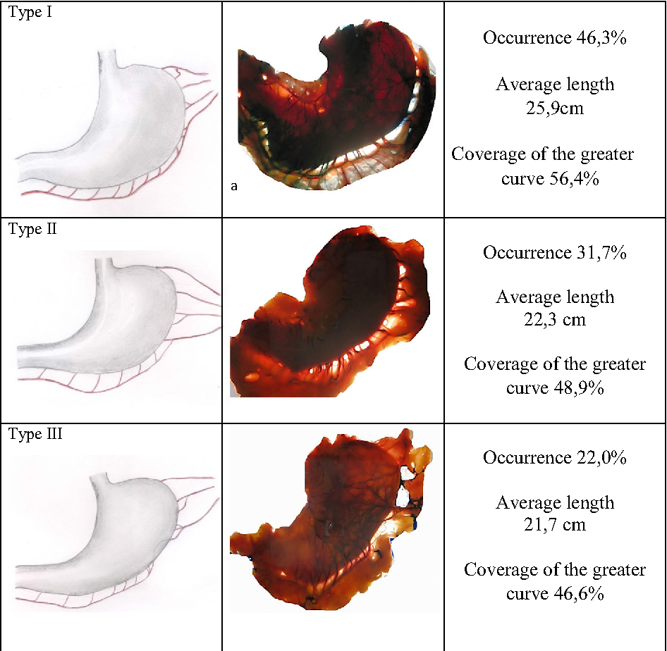 Vascular Anatomy Of The Stomach Related To Resection Procedures