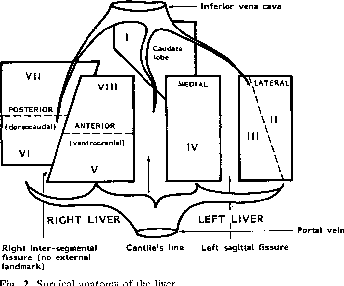 Figure 2 from Grey Turner Memorial Lecture. Changing Role of Liver ...