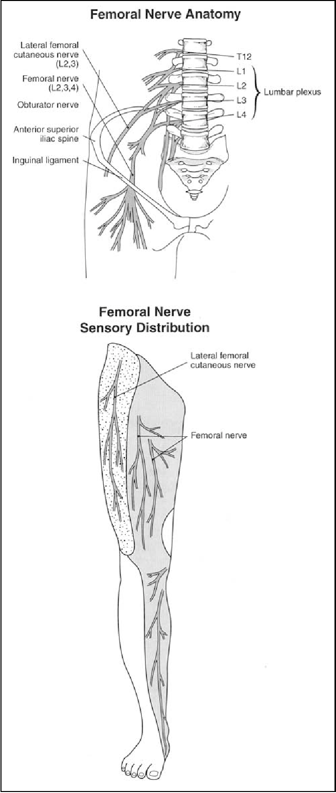 Femoral nerve palsy as a complication of anterior iliac crest bone ...