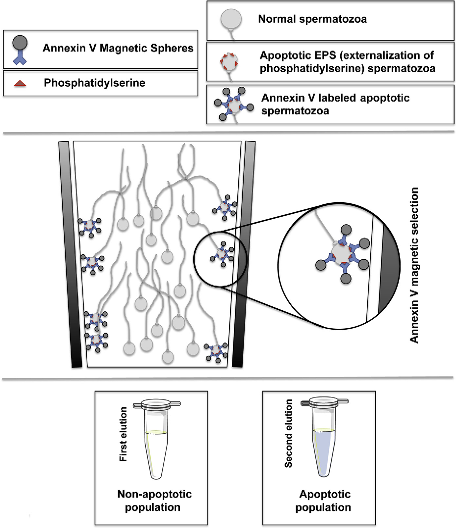 Selection of nonapoptotic sperm by magnetic activated cell sorting figure 1 ccuart Choice Image