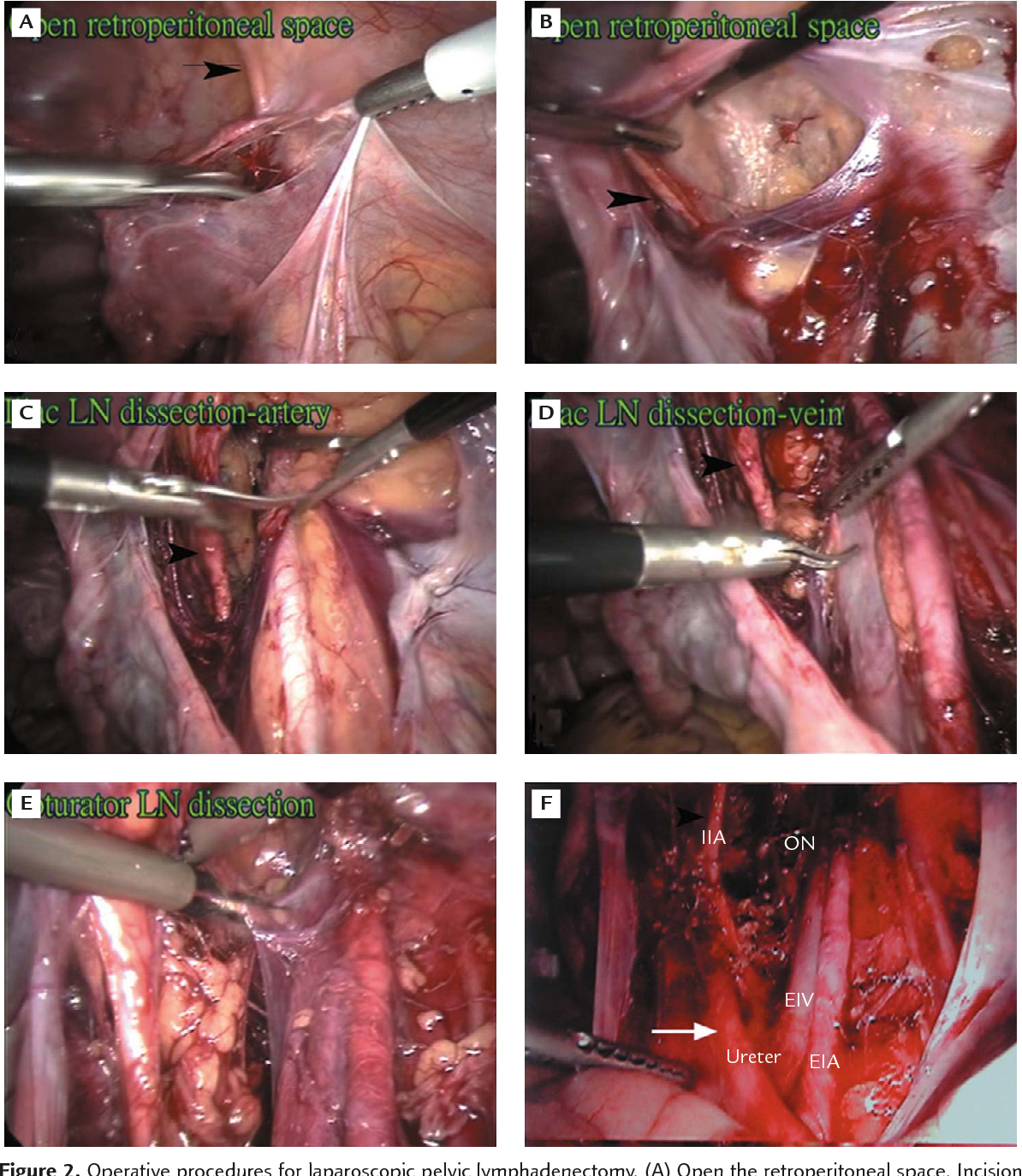 Figure 2 from Application of laparoscopic surgery in gynecological ...