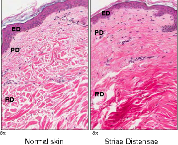 Figure 2 Histological comparison between normal skin and striae distensae (SD) skin H+E stains (magnification 98.0). The normal epidermis has basket weave appearance and well formed rete ridges. In contrast, SD shows loss of the rete ridge pattern. Additionally, normal dermis demonstrates parallel collagen bundles to the surface, which are evenly spaced, which is in contrast to SD dermis. ED, epidermis; PD, papillary dermis; RD, reticular dermis.