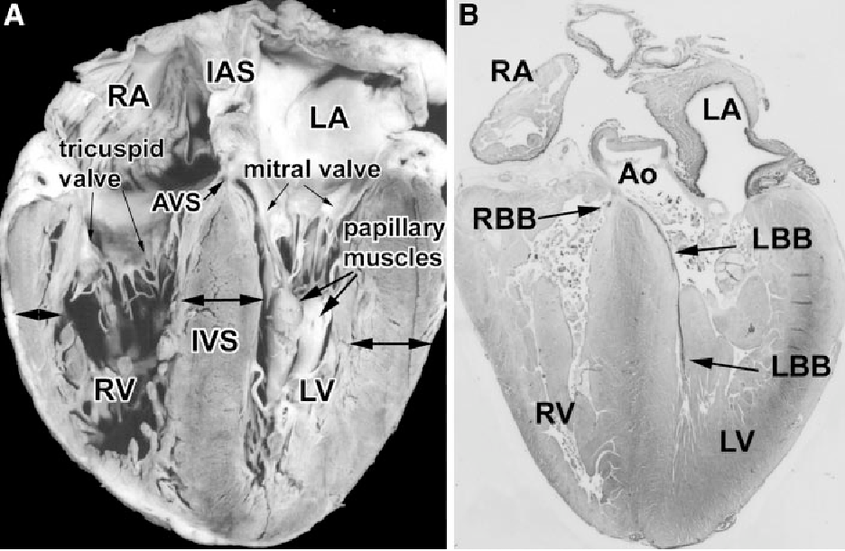 Developmental Anatomy Of The Heart A Tale Of Mice And Man
