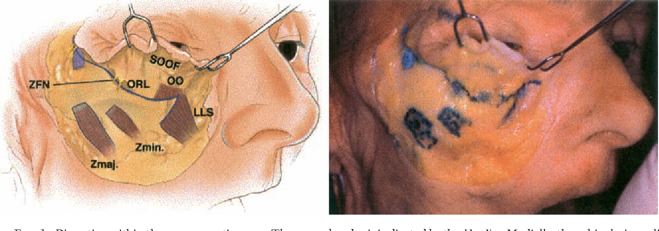 Surgical Anatomy Of The Ligamentous Attachments Of The Lower Lid And
